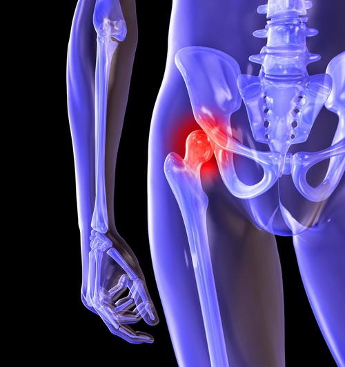 Новое в лечении тазобедренных суставов