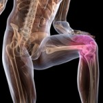 Боли в ногах: народные средства