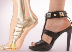 Болят и отекают ноги по причине