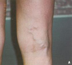 Народный способ лечение варикоза