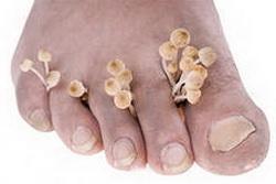 Грибок стопы: симптомы