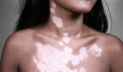 Как повысить меланин в организме