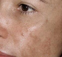 Пигментные пятна на лице в области глаз